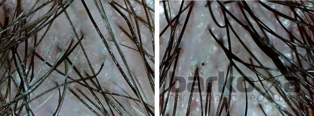 Вид кожи головы под микроскопом до и после пилинга.